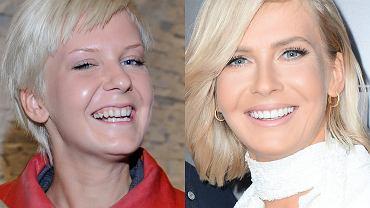 Edyta Pazura i Natalia Siwiec zmieniły swoje... zęby. Nie tylko one