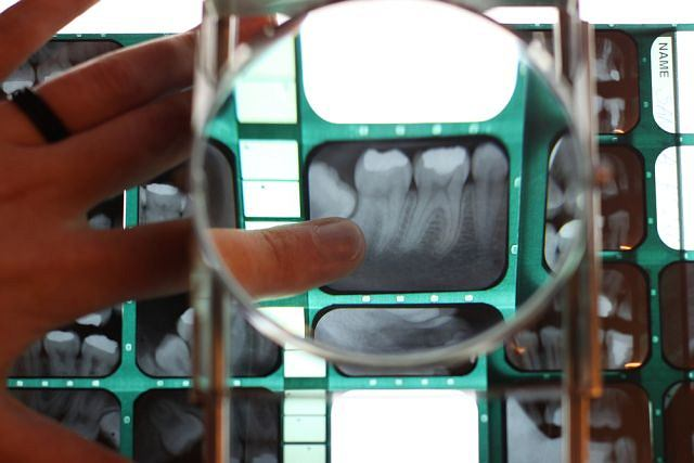 Zdjęcie wykonane pantomogramem pozwala ocenić m.in. skalę zmian spowodowanych próchnicą