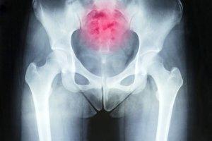 Coccygodynia (ból w obrębie kości guzicznej/ogonowej)