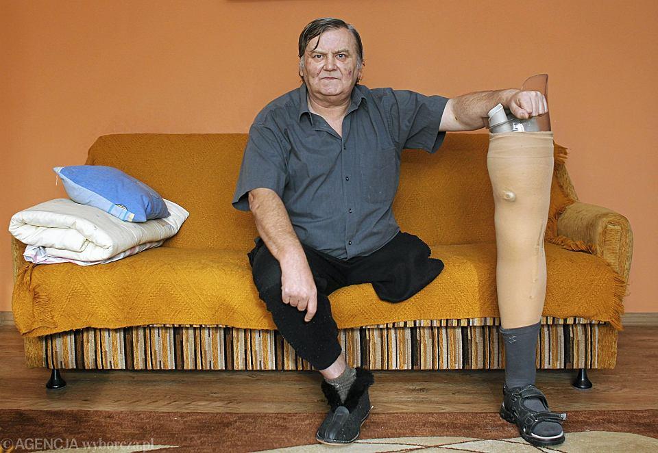 Jak Uratować Nogi Przed Miażdżycą I Cukrzycą