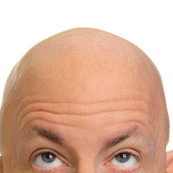 50 procent panów w wieku 50 lat ma dostrzegalną łysinę. U 30-latków - około jednej trzeciej. W jakimś stopniu owłosienie traci aż 96 proc. mężczyzn rasy kaukaskiej. W znacznie mniejszym stopniu przydarza się to Azjatom i Afrykanom.