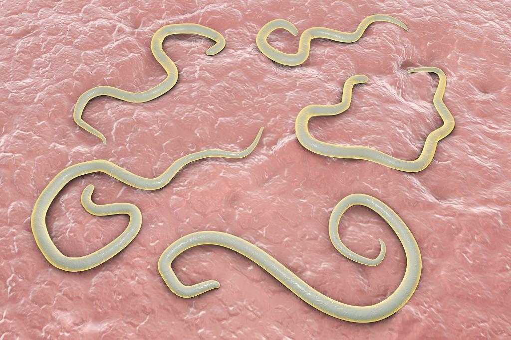 Toksokaroza - niebezpieczna choroba wywołana przez pasożyty