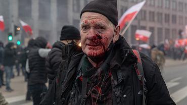 Fotoreporter 'Tygodnika Solidarność' Tomasz Gutry  postrzelony z policyjnej broni na Marszu Niepodległości. Warszawa, 11 listopada 2020