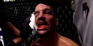 """""""Co sądzicie?"""" – spytał zawodnik UFC, pokazując na swoje zęby. Koszmar [WIDEO]"""