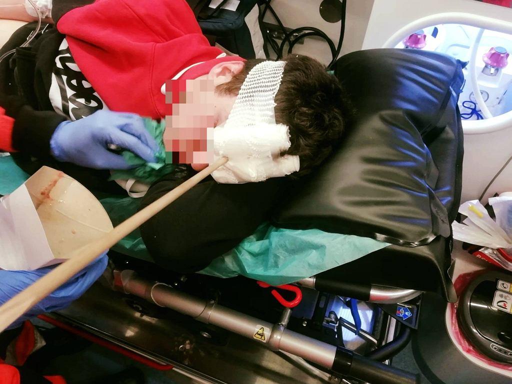 16-letni chłopiec został postrzelony z łuku przez starszego kolegę