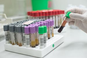 Podwyższone monocyty we krwi - przyczyny. Jaka jest norma monocytów we krwi