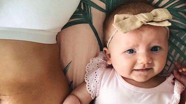 Mama dwóch dziewczynek pokazała jak wygląda jej brzuch po dwóch cięciach cesarskich.