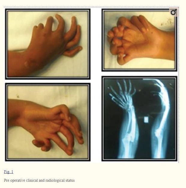 Ręka 15-letniej pacjentki |
