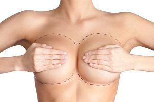 Dlaczego Polki powiększają piersi i jak postrzegają siebie po zabiegu? Naukowcy sprawdzili