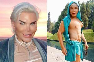 Żywy Ken przed operacjami