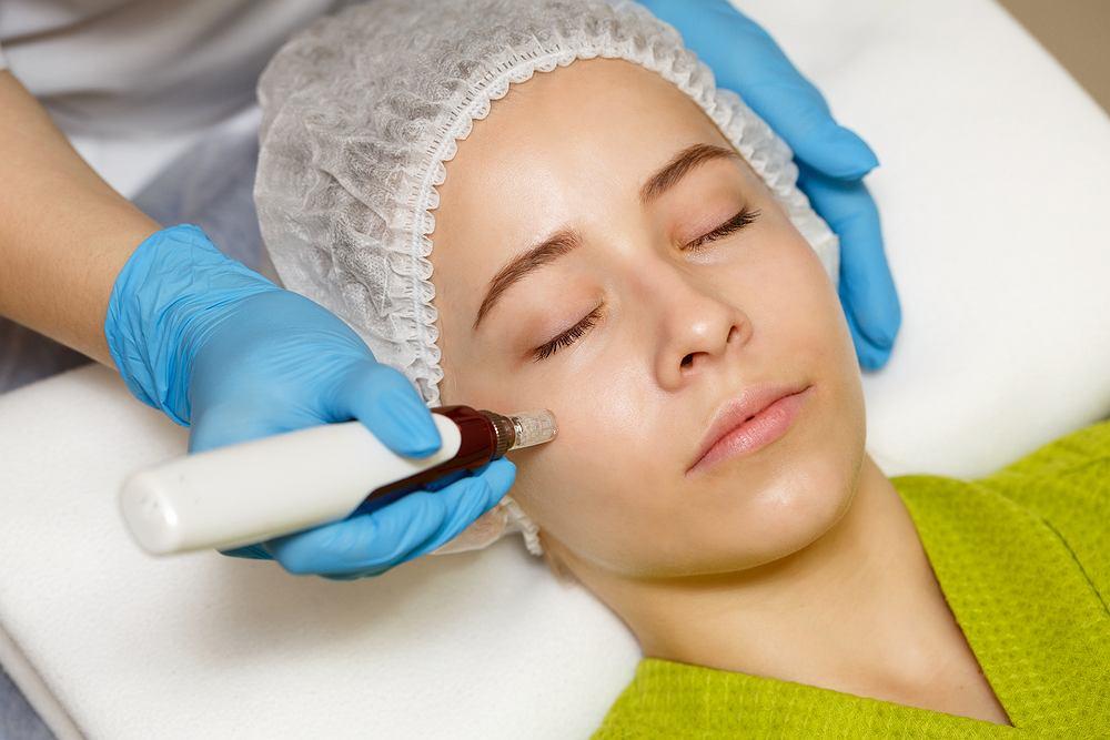 Dermapen jest elektrycznym urządzeniem medycznym wykorzystującym 12 cienkich mikroigieł nakłuwających skórę w sposób automatyczny