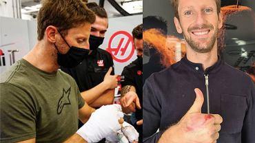 Romain Grosjean na zdjęciu z poparzoną ręką bez opatrunków. Źródło: Instagram