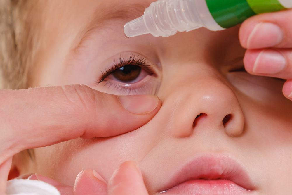Zapalenie spojówek u dziecka może mieć różne przyczyny, najczęściej odpowiadają za nie bakterie i choroby alergiczne.