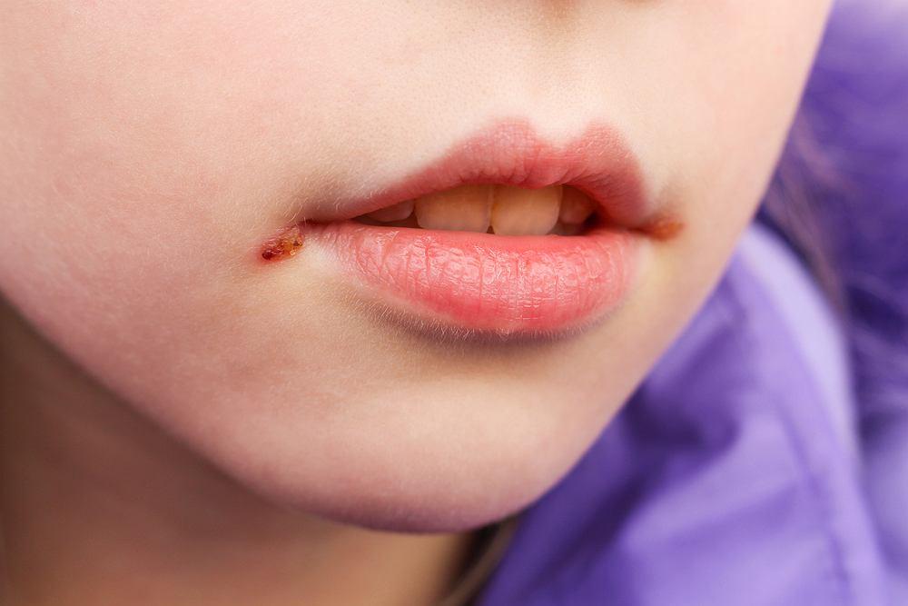 Zajady u dziecka pojawiają się z wielu powodów, najczęściej u tych, które często chorują, są przemęczone, zestresowane lub niedożywione.