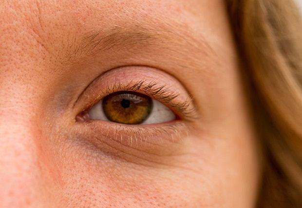 Drganie powieki zwykle przechodzi samoistnie