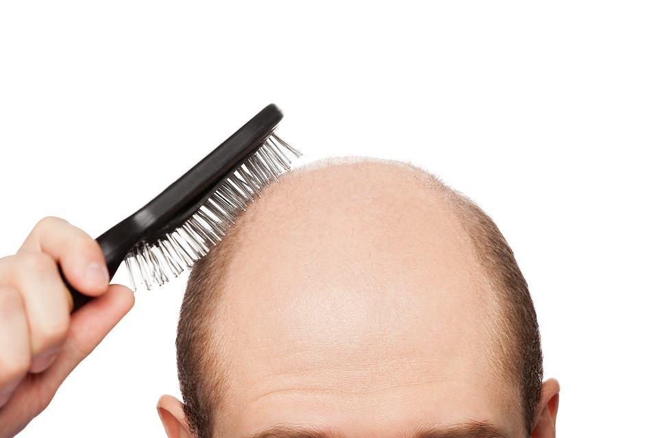gdzie się udać gdy wypadają włosy