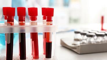 Konflikt płytkowy jest jednym z typów konfliktu serologicznego, który dotyczy płytek krwi