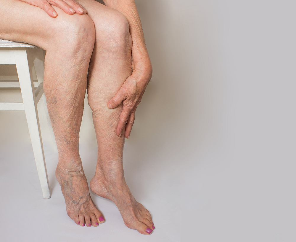 Syndrom ciężkich nóg
