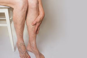 Ciężkie nogi: przyczyny. Jak radzić sobie z syndromem ciężkich nóg?