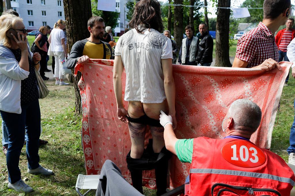 Uwolnieni z białoruskiego aresztu manifestanci opowiadają o torturach, jakich doświadczyli.