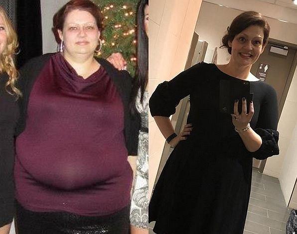 Ta dziewczyna schudła prawie 80 kg dzięki trzem PROSTYM sposobom. Wystraczyło, że...