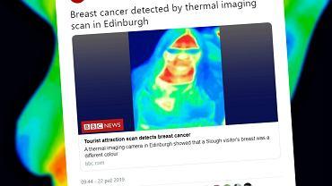 Rak został wykryty przez kamerę termowizyjną w muzeum