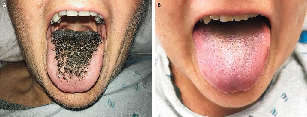 Zażywanie antybiotyków może być przyczyną schorzenia o nazwie 'czarny włochaty język'. Przekonała się o tym 55-letnia mieszkanka USA