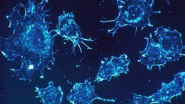 Komórki rakowe w tkance łącznej