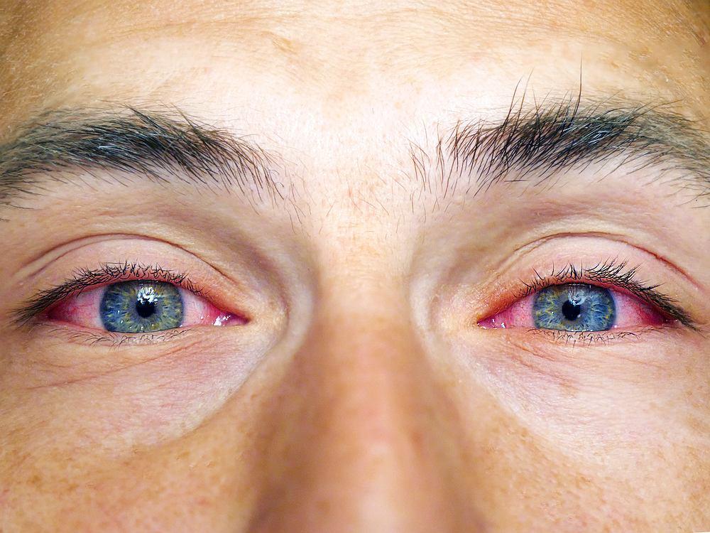 Czerwone oko może mieć wiele przyczyn i wiązać się z przemęczeniem lub przepracowaniem, ale także może być objawem rozpoczynającej lub toczącej się choroby gałki ocznej.