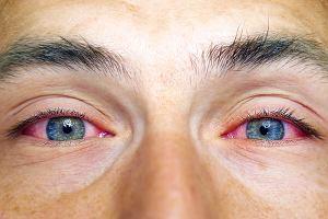 Zawroty Głowy Ból Oczu Infozdrowie24pl