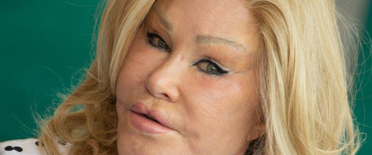 """Tak """"Kobieta kot"""" wyglądała przed operacjami. Po blond piękności nie ma śladu"""