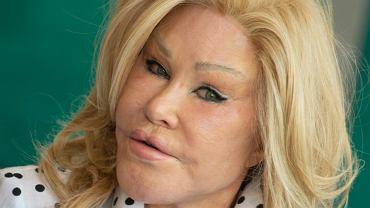 """Tak """"Kobieta kot"""" wyglądała przed operacjami. """"Oszalała"""""""