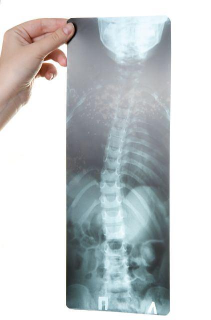 Boczne skrzywienie kręgosłupa na zdjęciu rentgenowskim