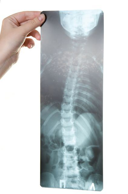 Boczne skrzywienie kręgosłupa: skolioza