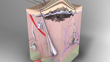 Kaszak pojawia się na skórze głowy lub pod tkanką skórną