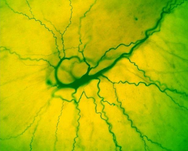 Neuron w mózgu