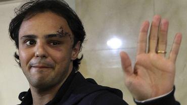 Choć z tą twarzą mógłby grać Frankensteina bez charakteryzacji, Felipe Massa nie traci uśmiechu i nadziei, że wszystko zakończy się dobrze. My też mamy taką nadzieję i trzymamy kciuki!