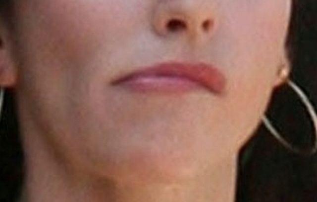 Czy te wykrzywione usta to efekt źle wykonanej operacji plastycznej? W jej przypadku byłoby to bardzo możliwe...
