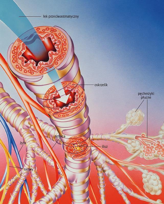 Działanie leku. Ilustracja przedstawia działanie leku przeciwastmatycznego na oskrzela zmienione w wyniku astmy (przedstawiono także nerwy w kolorze żółtym, tętnice w czerwonym, żyły w niebieskim). Lek rozszerzający oskrzela hamuje skurcz mięśni gładkich oskrzeli powodujący zwężenie ich światła i wpływający na gwałtowny wzrost wydzielania śluzu (oznaczonego na żółto), który znacznie zmniejsza pojemność oddechową płuc