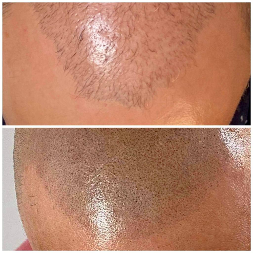 Odtworzenie mieszków włosowych