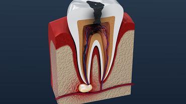 Zgorzel zęba