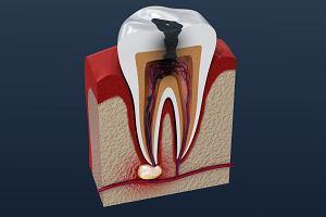 Zgorzel zęba: przyczyny, objawy. Czym grozi zgorzel zęba?