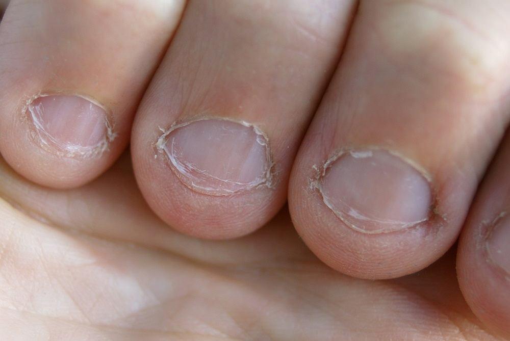 20-latka uzależniona od obgryzania paznokci musiała mieć amputowany kciuk z powodu raka skóry, który rozwinął się w łożysku odgryzionego przez nią kilka lat wcześniej paznokcia