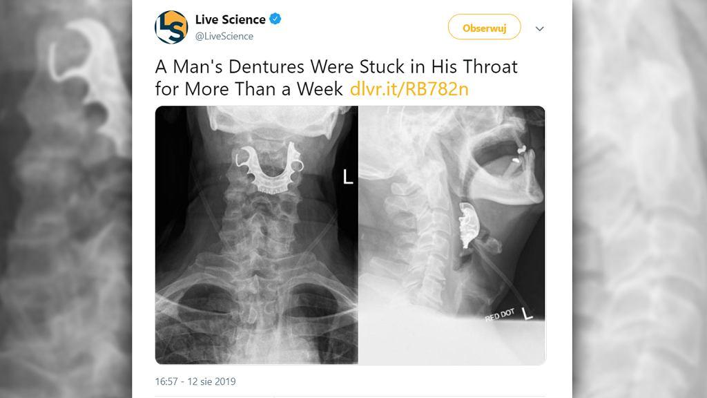 Po operacji mężczyzna skarżył się na bóle. Okazało się, że w trakcie zabiegu wpadła mu do gardła sztuczna szczęka