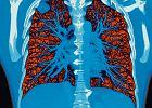 Będą badania dla zagrożonych rakiem płuc