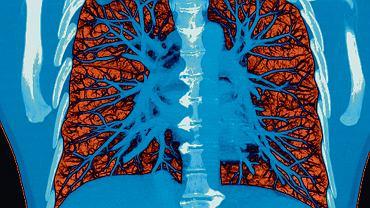 Wykrywalność  raka płuca  w pierwszym stadium była o 13 proc. wyższa, gdy użyto tomografii zamiast badania rentgenowskiego