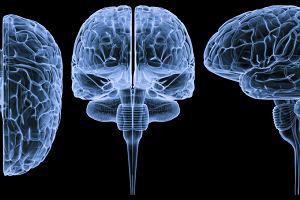 Pień mózgu, uszkodzenie pnia mózgu