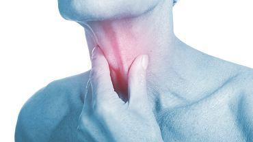 Zapalenie krtani - leczenie opiera się głównie na farmakologii