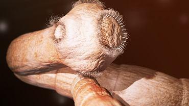 Tasiemiec należy do płazieńców. To jeden z najgroźniejszych pasożytów zagrażających zdrowiu i życiu człowieka.