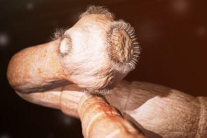 Tasiemiec: gatunki, drogi zarażenia i objawy. Jak się go pozbyć?